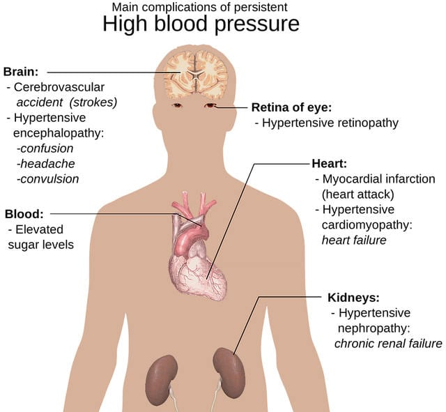 high blood pressure home remedies 9