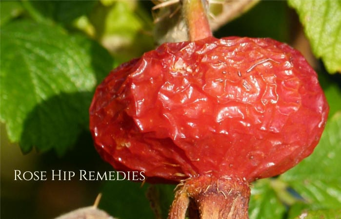 rose hip remedies