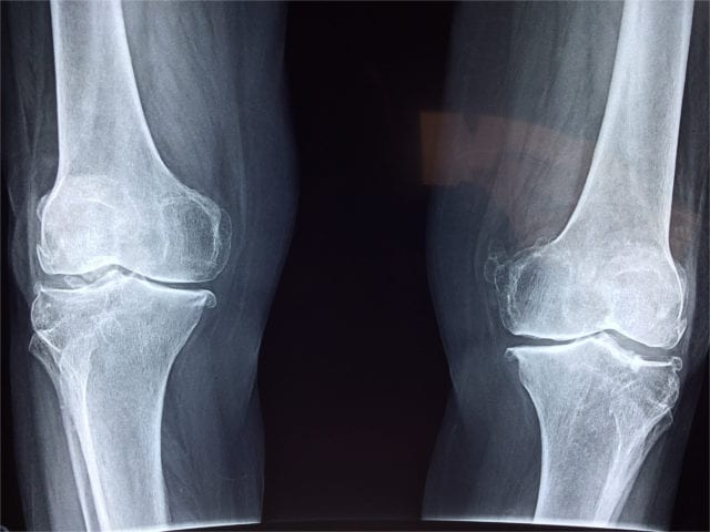 Vitamin D reduces risk of Osteoporosis